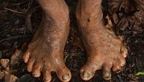 亞馬遜原始部落以獵猴為生多為6根腳趾扁平足(組圖)