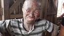菲律賓一男子患罕見皮膚病被視作邪惡鬼怪